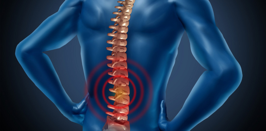 Chronic Back Pain: 6 Uncommon Causes